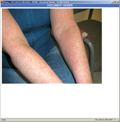 screenshot-dermatological photo