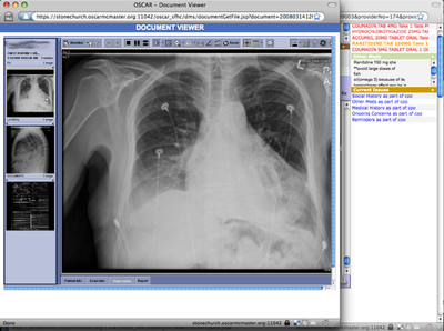 screenshot-xray image